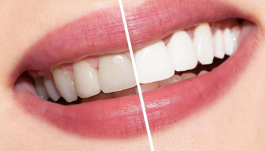 Here's How To Get DIY Teeth Whitening Right